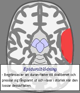blödning i huvudet