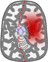 blödning i hjärnstammen