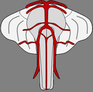 stroke höger sida