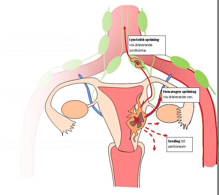prostatacancer som spridit sig till lymfan